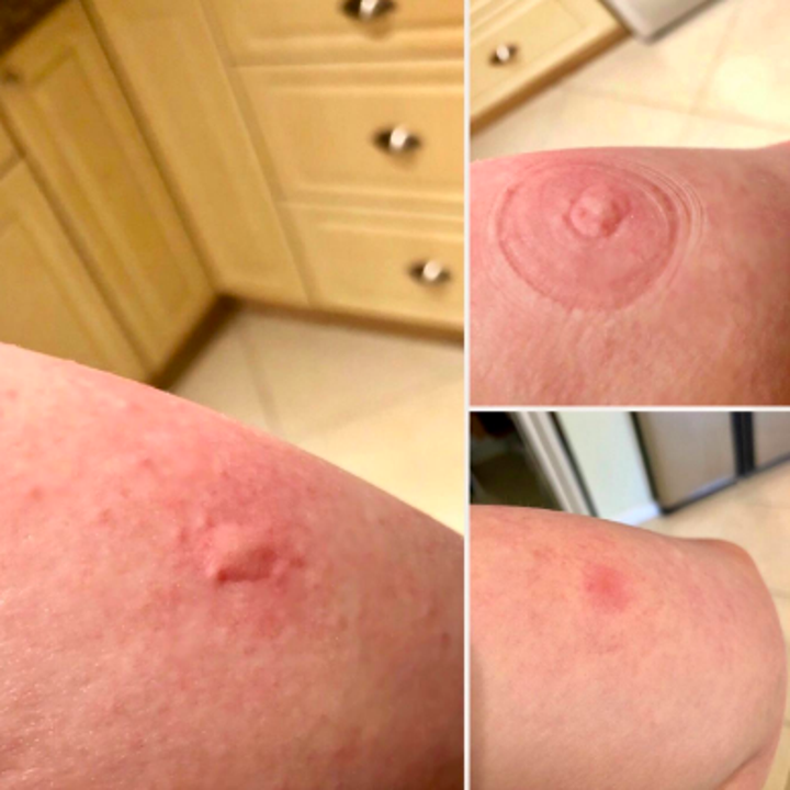 A reviewer's before-and-after showing a large, swollen bug bite, the bite immediately after use where a suction mark is present, and the bite a while after use where the skin is still slightly red but no longer swollen.