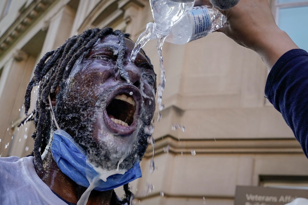 Someone washing pepper spray off the face of a black Black Lives Matter protestor