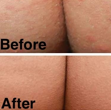 A before and after comparison with and without the acne clearing lotion