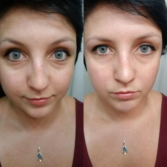Reviewer's before and after picture of their puffy, dark under-eyes and then smooth, brighter under-eyes