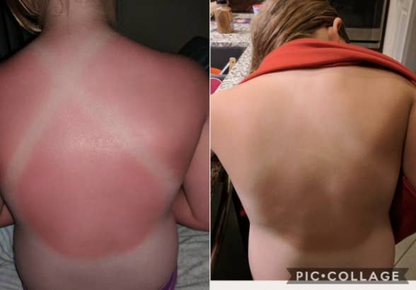 to the left: a badly burnt back of a reviewer, to the right: the same back healed and tan