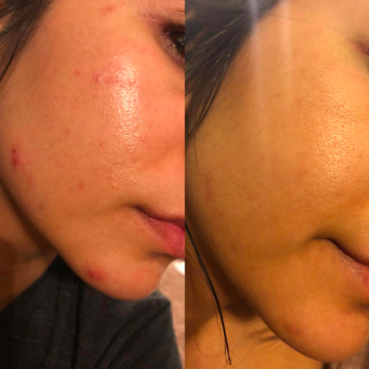 A before and after customer review photo of their face.