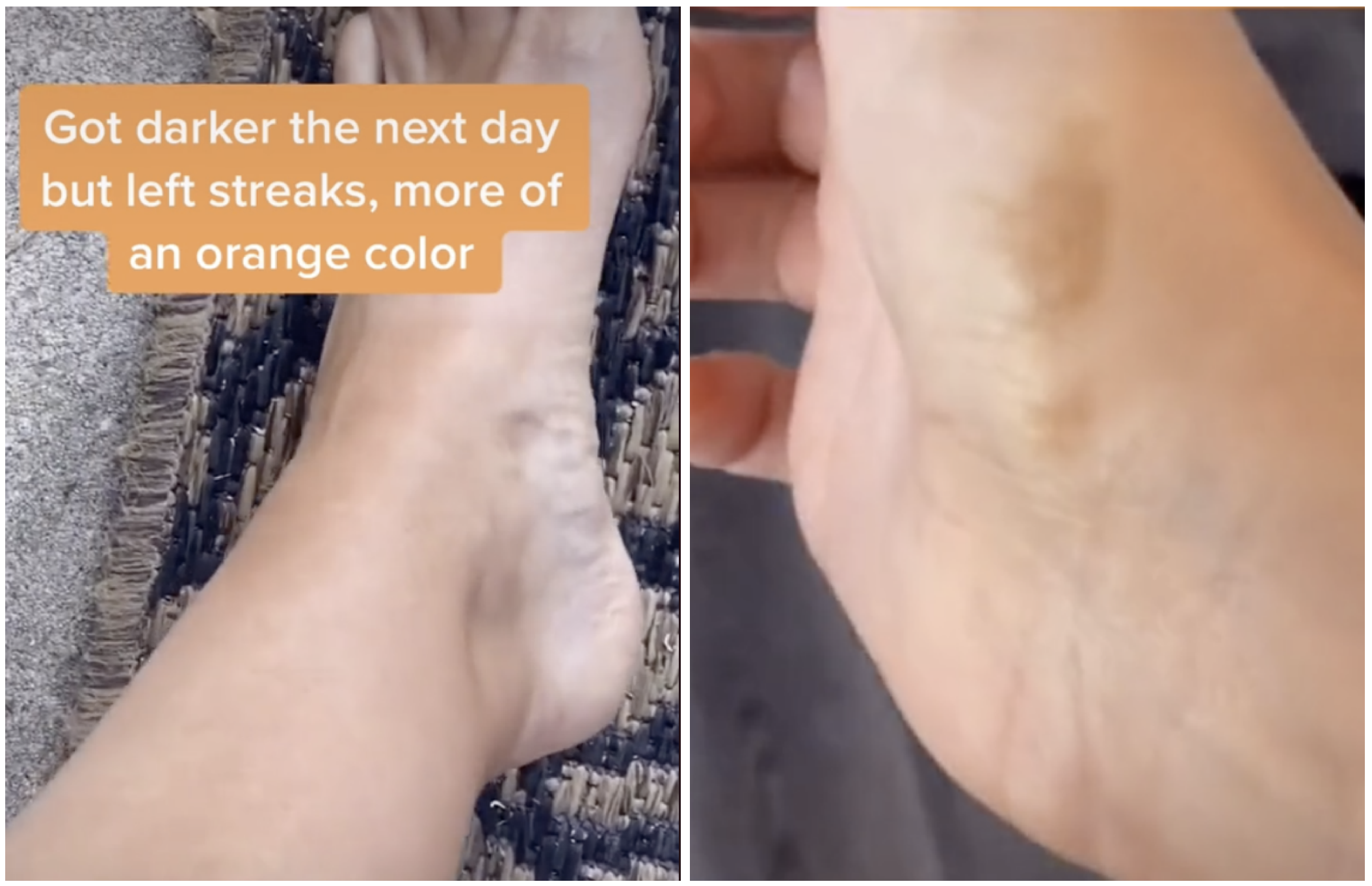 Photo of patchy areas on Krista's hands and feet.