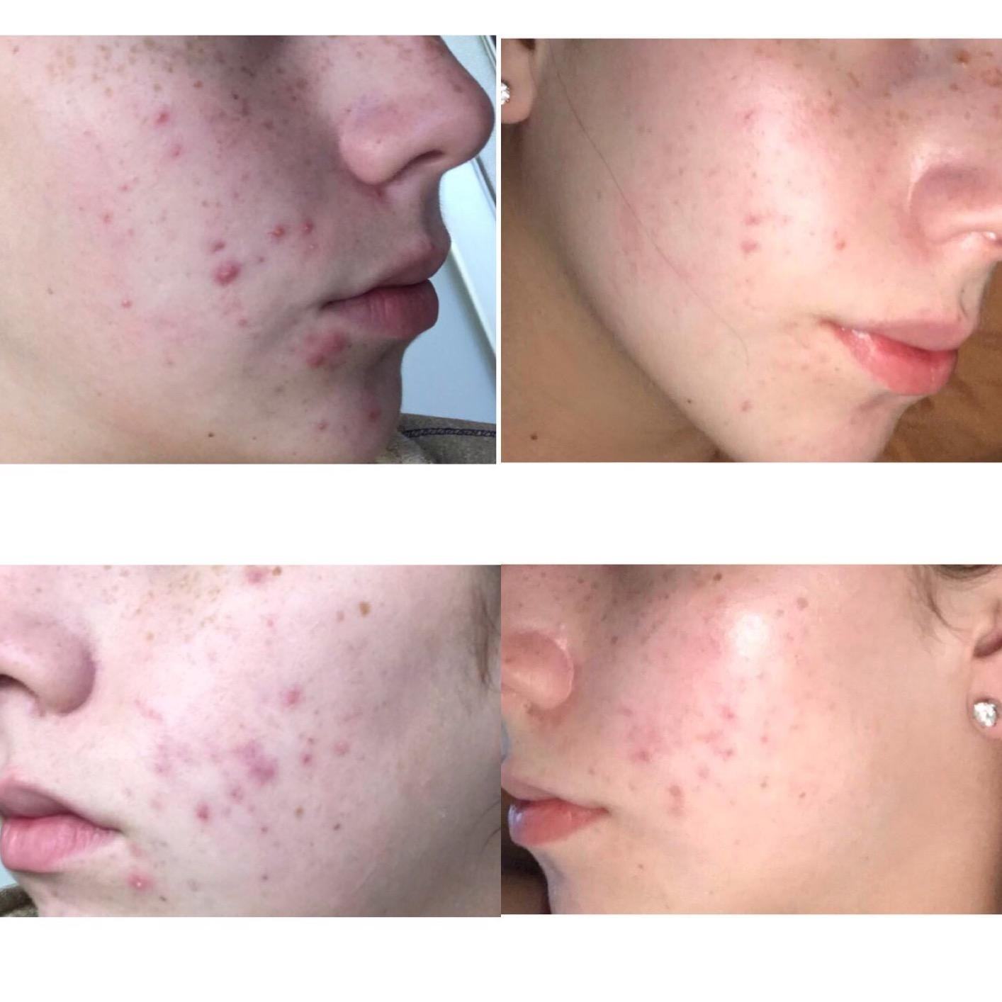 Both cheeks of a reviewer before and after using the mask, with very reduced acne after