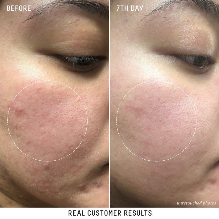 Customer review photo provided by Biossance showing face before and after using the serum over the span of seven days. The before photo shows redness and uneven texture and the after photo shows smoother texture and less redness