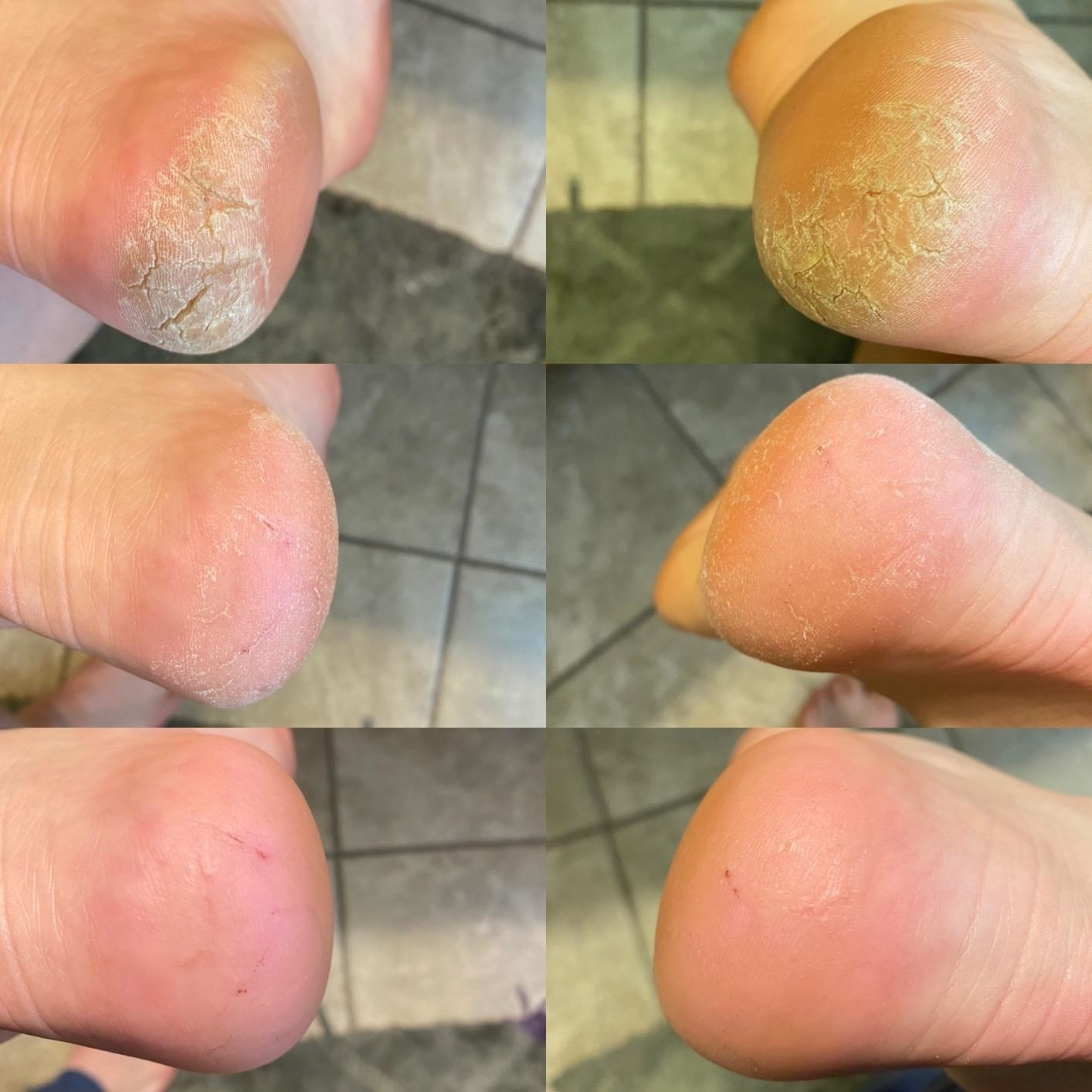 A collage of six images: the top cracked heels before treatment, the middle mid-treatment, the bottom after lotioning, not cracked  at all