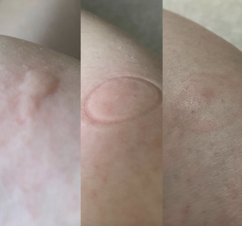 a before and after reviewer photo of a swollen bite, a suction mark imprint, and reduced swelling