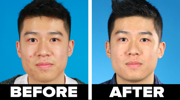A person before using the bentonite clay mask and after with significantly less acne