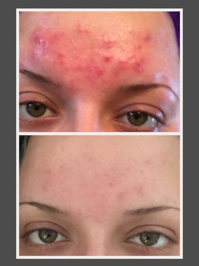 Reviewer's before and after showing that the cleanser cleared up all of their angry forehead breakouts with minimal scarring