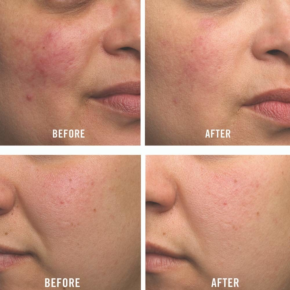 User before and after photos showing the cream lessened redness and reduced the number of breakouts