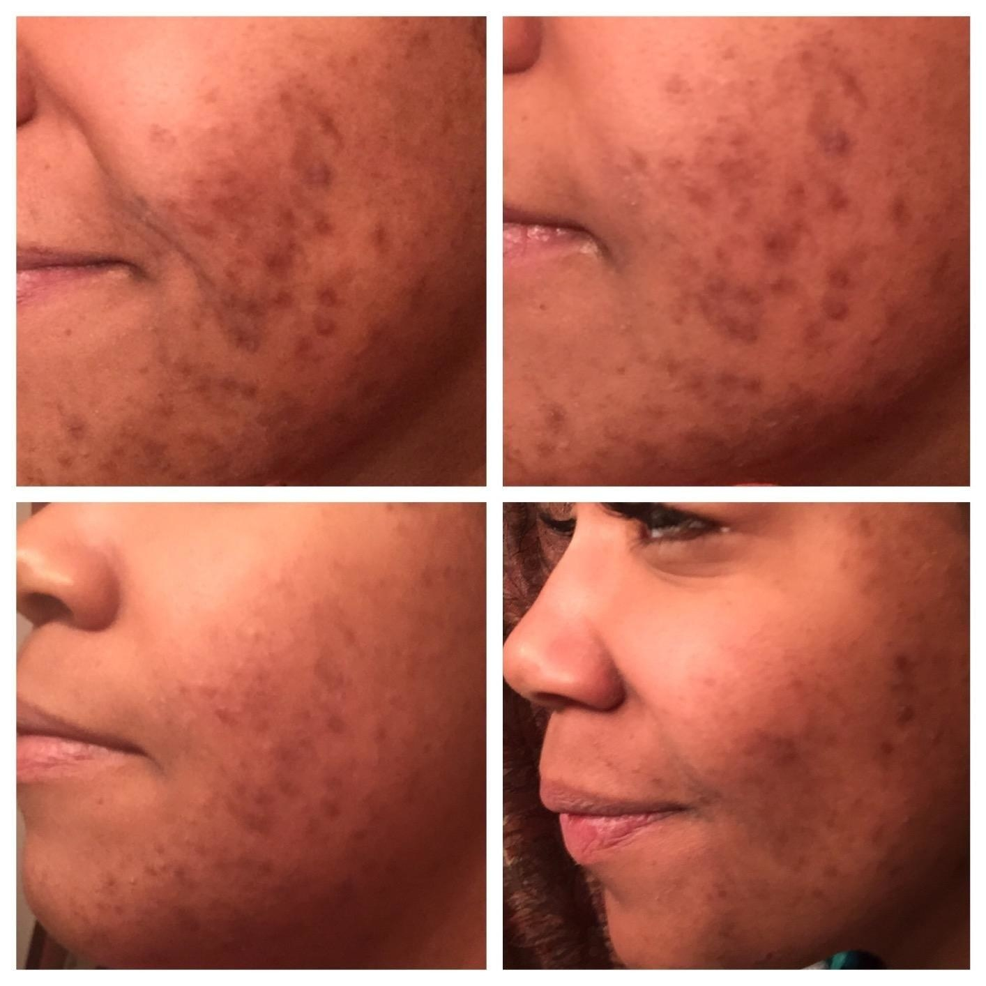Reviewer's progression photos showing the oil significantly lightened their acne scars and evened their skin tone