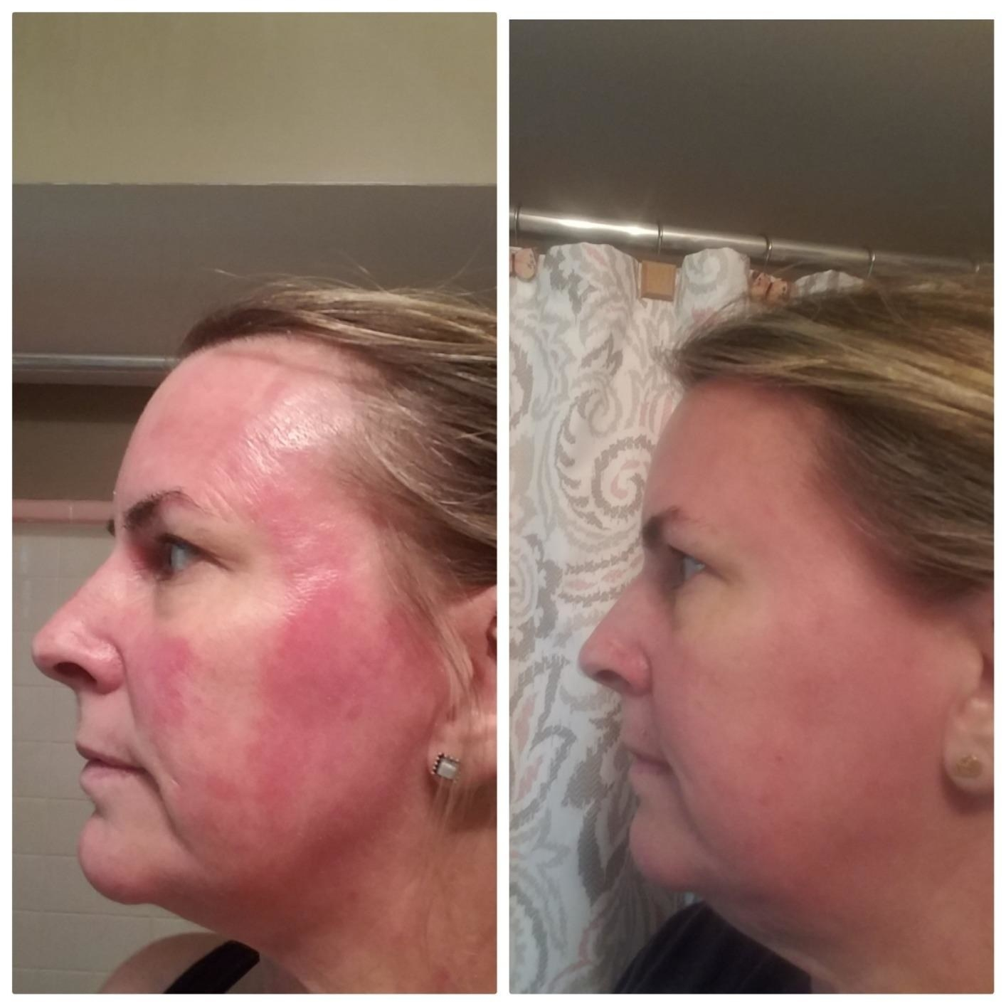 Reviewer before and after photo showing the cream substantially reduced redness on their cheek