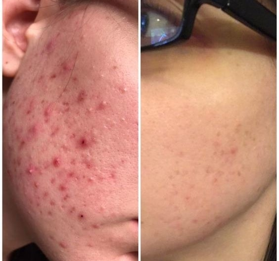 Reviewer's before-and-after with severe acne on their cheek to almost fully clear
