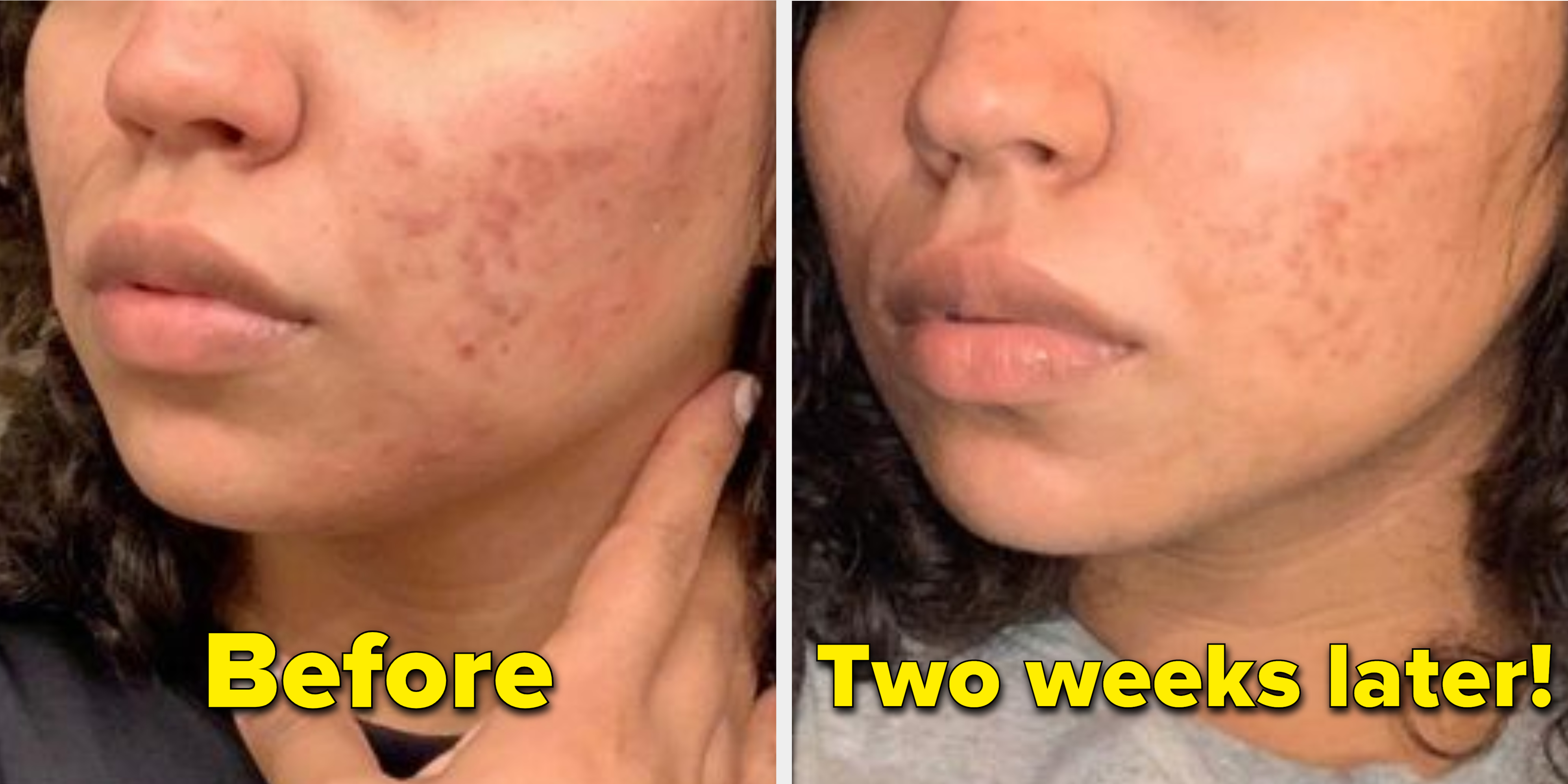 Way get quickest acne to of the rid Simple Ways