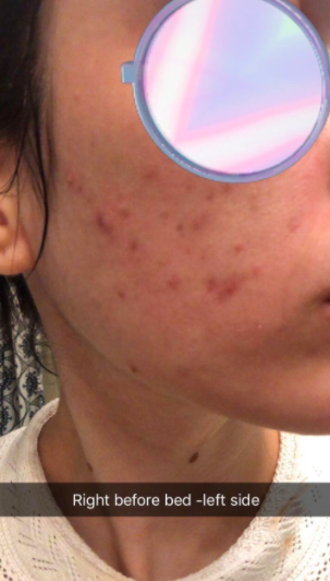 Reviewer's cheek with acne spots before applying Ebanel's Acne Spot Treatment Drying Lotion