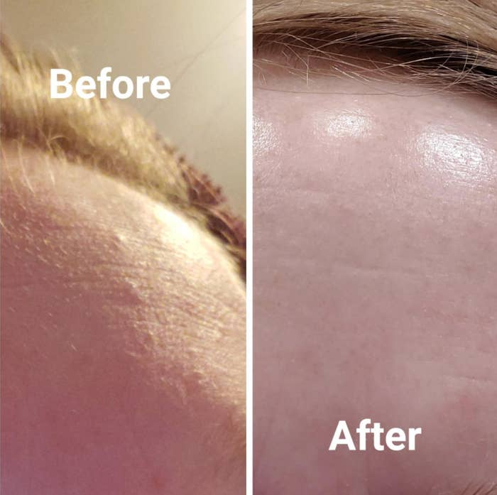 A reviewer's forehead originally has small bumps and acne, but looks smooth and healthy after using the exfoliator
