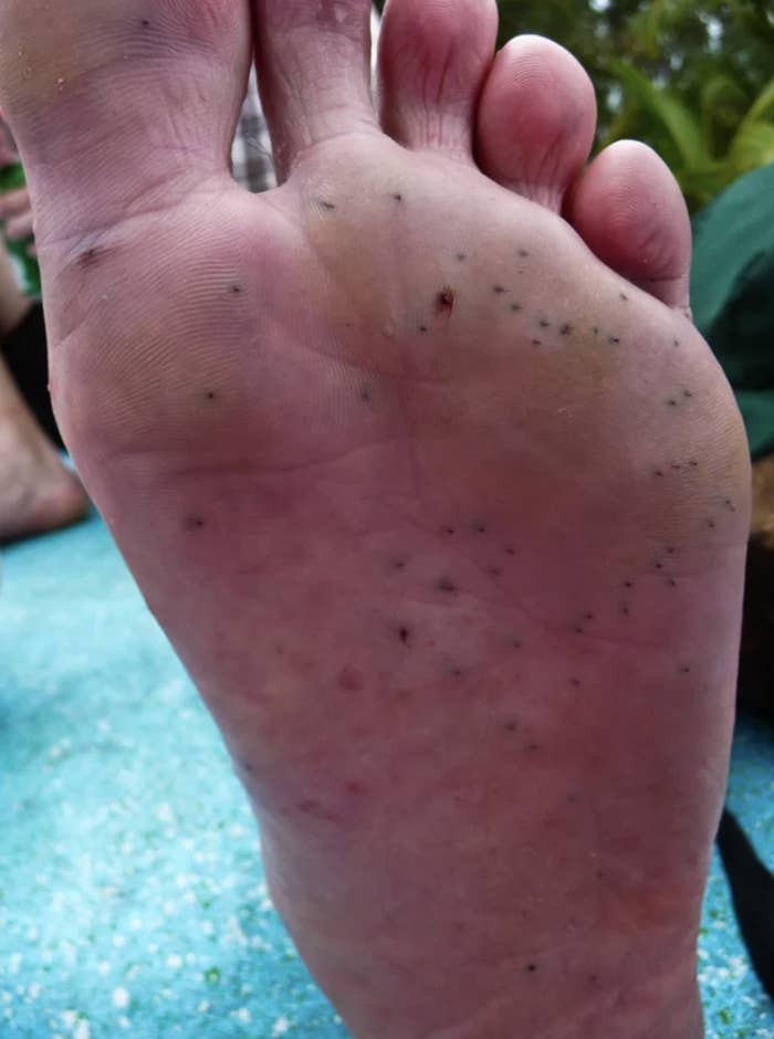 A foot with multiple wounds on the bottom from sea urchin spines.