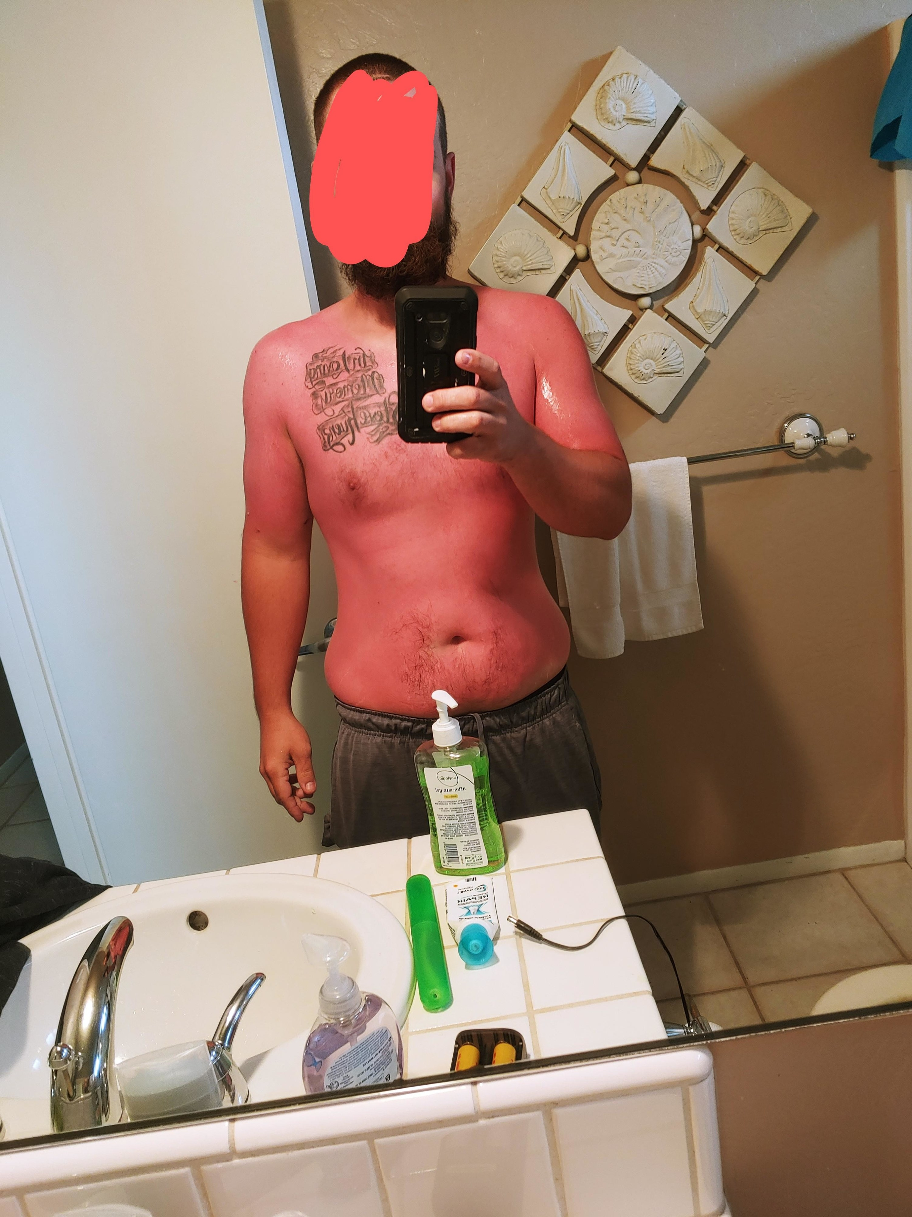 A mirror selfie of a shirtless man who is very sunburned