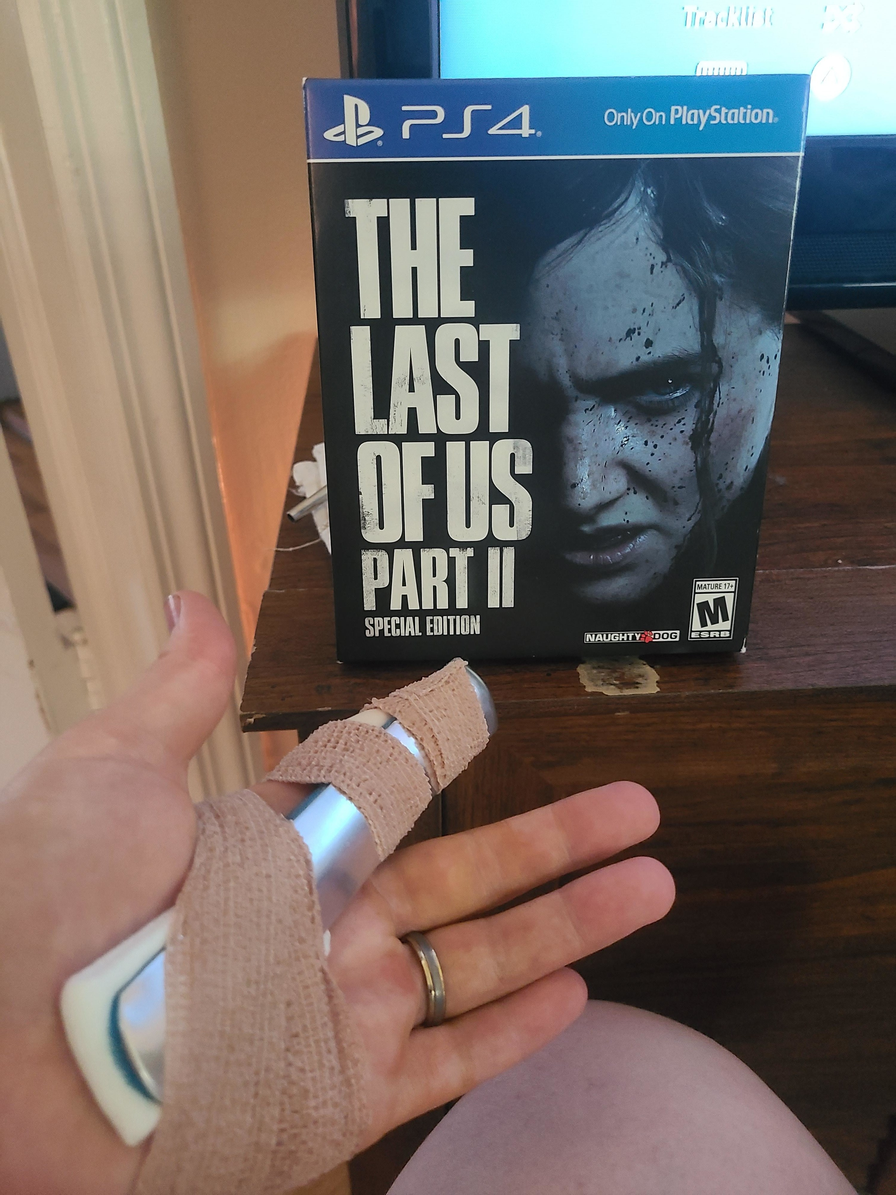 A finger in a splint posed in front of a video game case.