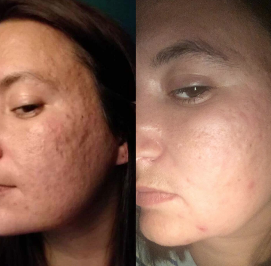 On the left, a reviewer has very bumpy, indented skin with acne. On the right, the reviewer has much more even skin, with fewer indentations and almost no bumps, with only slight acne