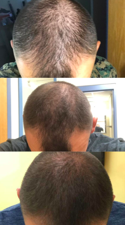 A reviewer showing a progression of images that tracks their hair growth after using the product