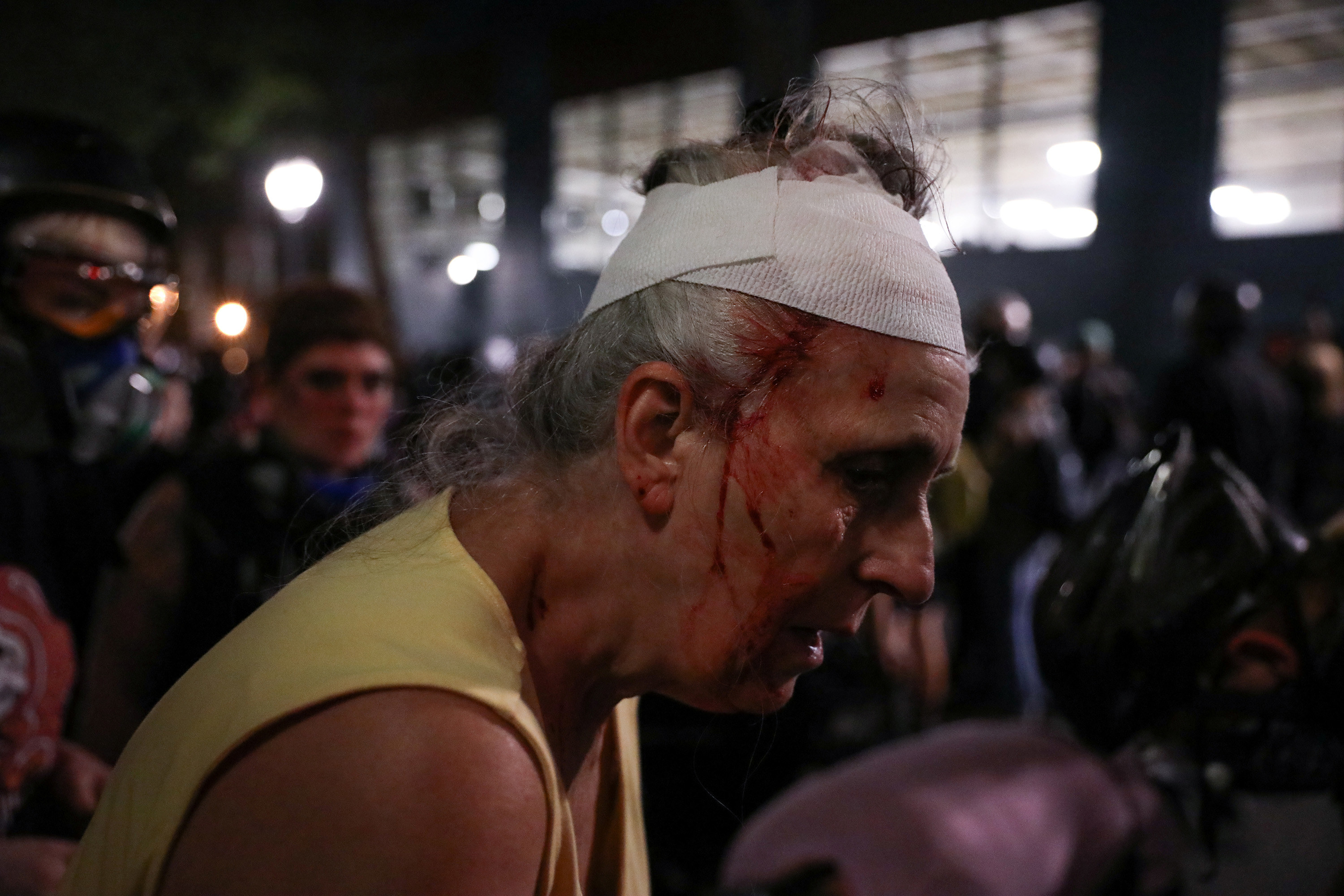 An older woman with a bandage on her head has blood stream down her face after being injured during a demonstration in Portland