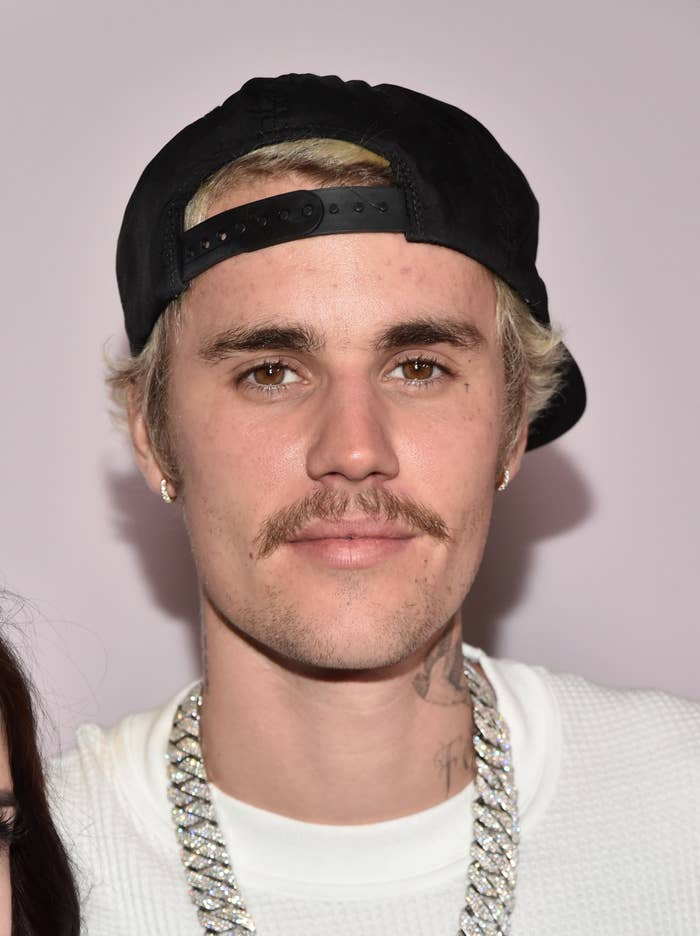 Justin Bieber wears a hat at an event with visibly adult acne on his forehead