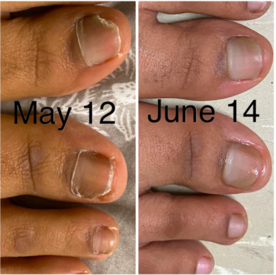 "On the left, a reviewer's toenails looking uneven and fungus-y, with the text ""May 12."" On the right, the same reviewer's toenails looking clearer and more even with the text ""June 14"""