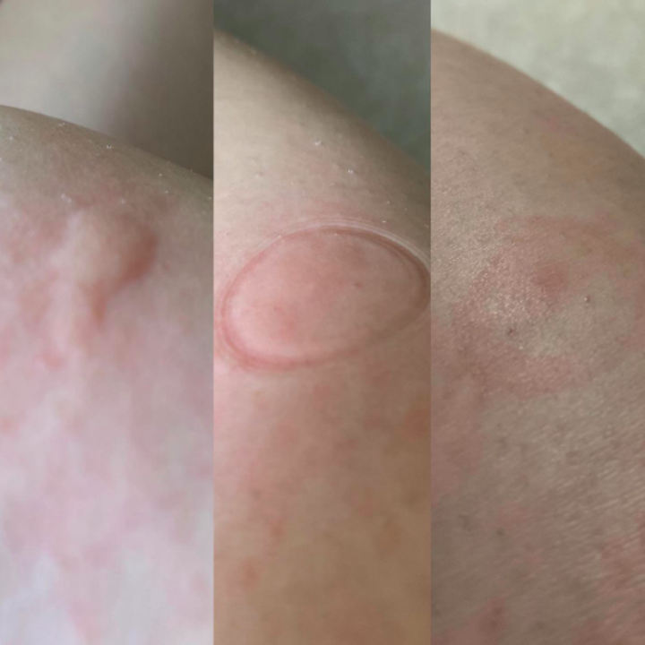 A before, during, and after photo of a reviewer's bug bite disappearing after using the tool