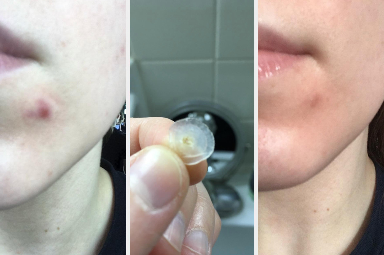 "A reviewer image of an acne spot, then another of the patch, then an ""after"" pic of the same acne spot looking much less red and raised"