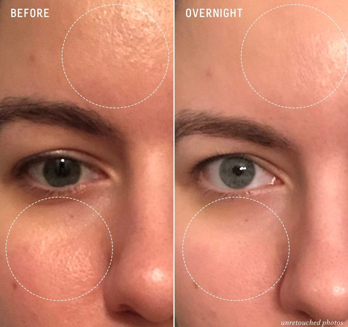 user before and after showing textured skin and open pores, then smooth poreless skin after using product
