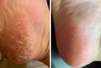 17 Products That Might Actually Help With Foot Fungus