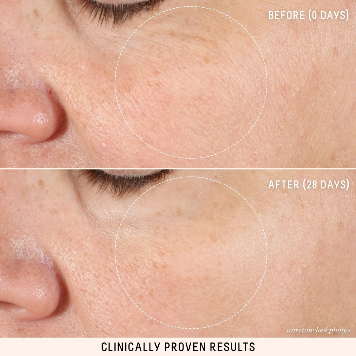 before and after, showing dry skin and fine lines before, then faded lines and hydrated skin after 28 days of use