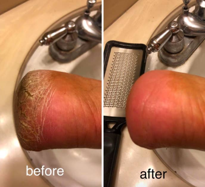 A customer review photo showing their heel before and after using the foot file.