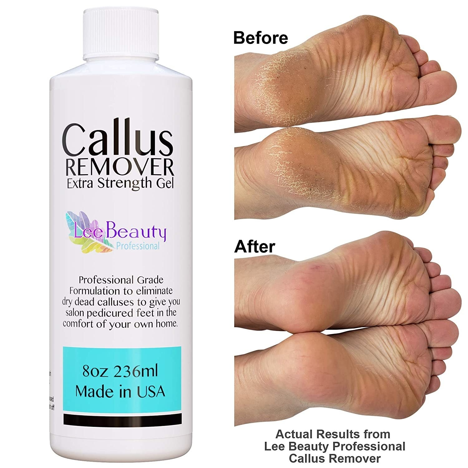 A bottle of the Callus Remover gel next to a before and after photo of someone who used it on their feet.