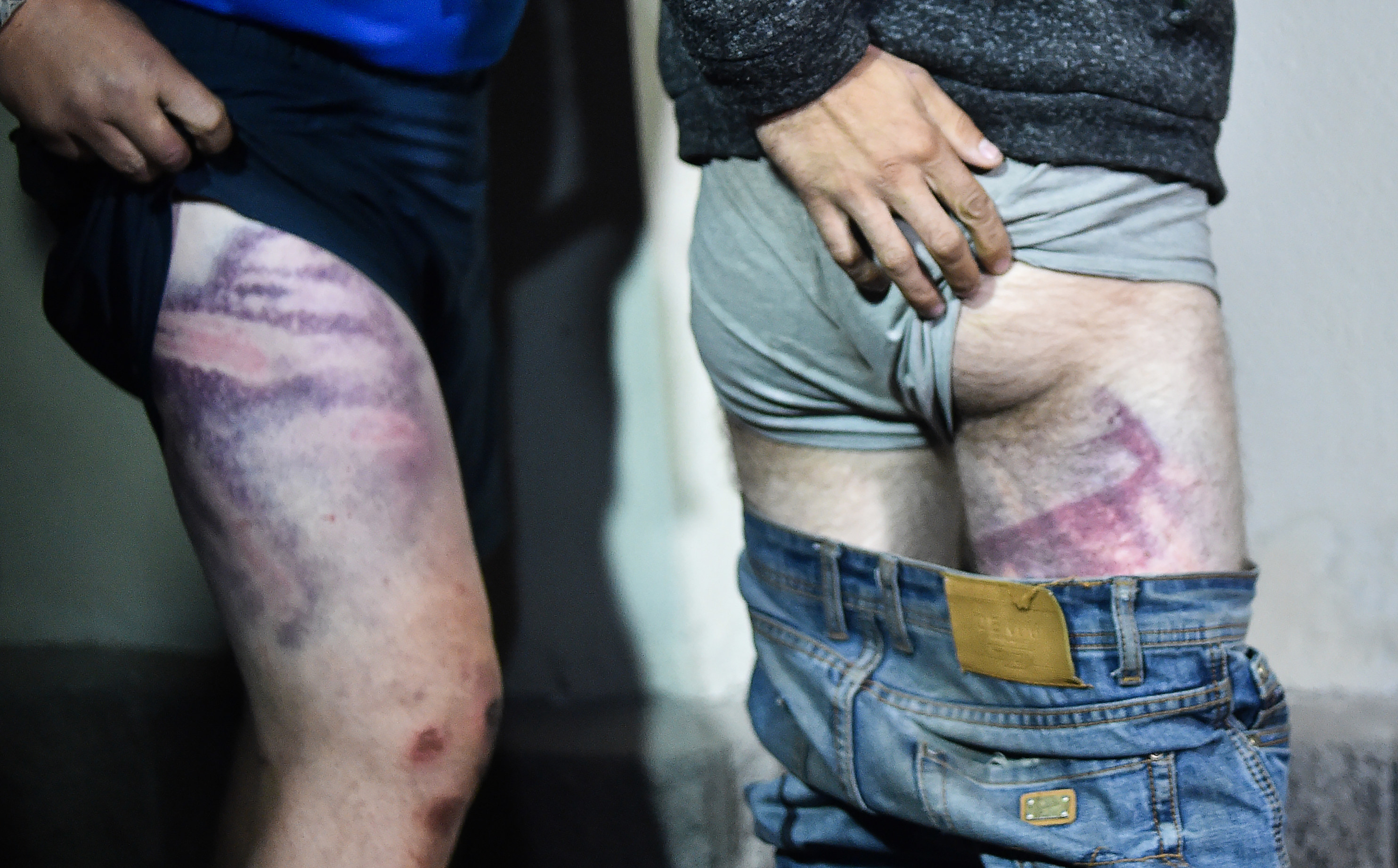 Two people lift up their shorts to show large bruises on their thighs