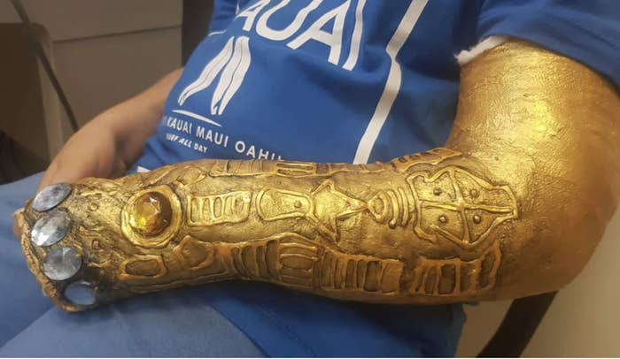 A cast has been re-fashioned to look like Thanos' gauntlet