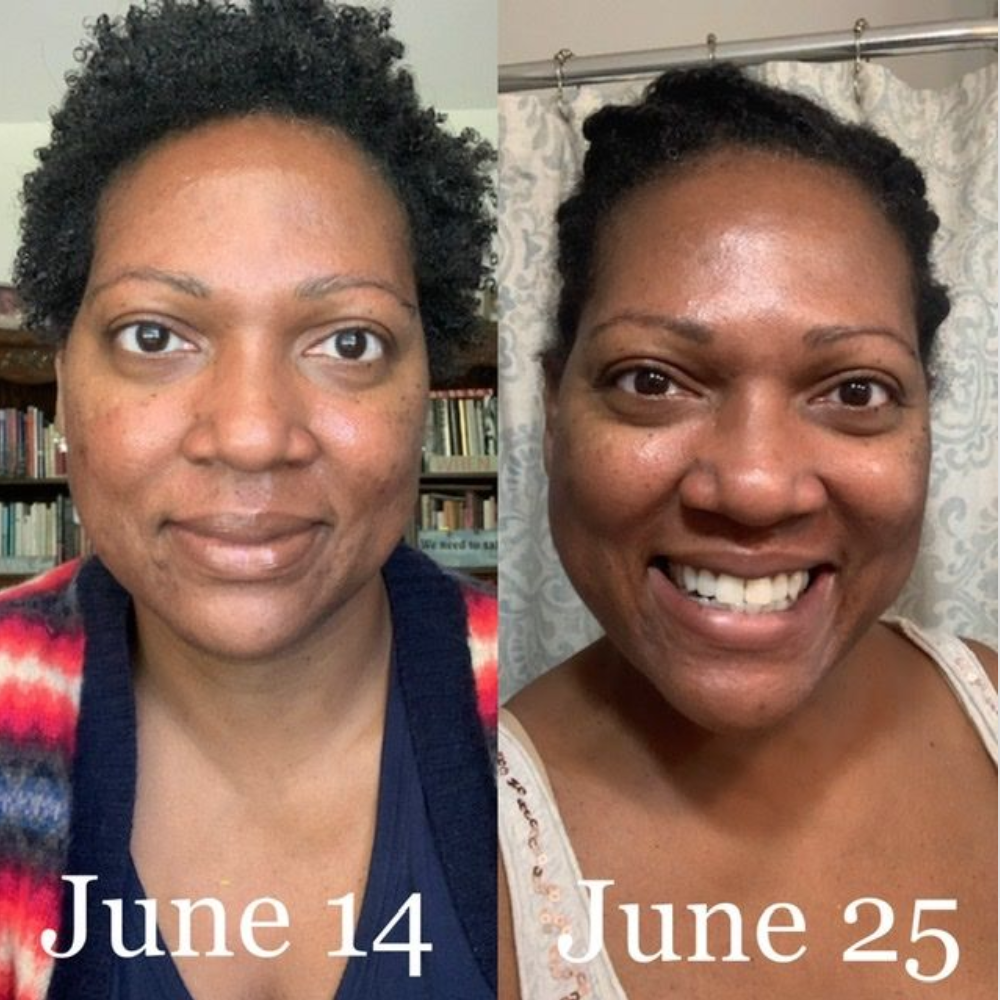 A Black reviewer shows their skin before using the set, which is duller and has some dark spots, compared to their skin after using the set, which is glowing and clearer