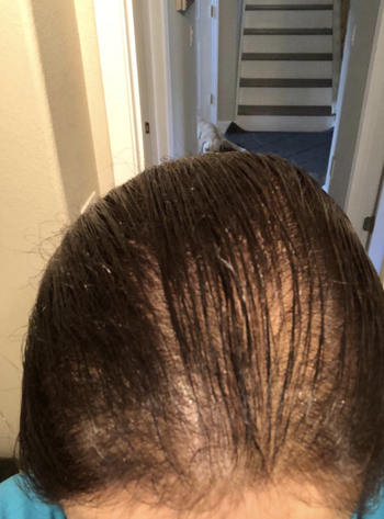 Reviewer image of thinning hair