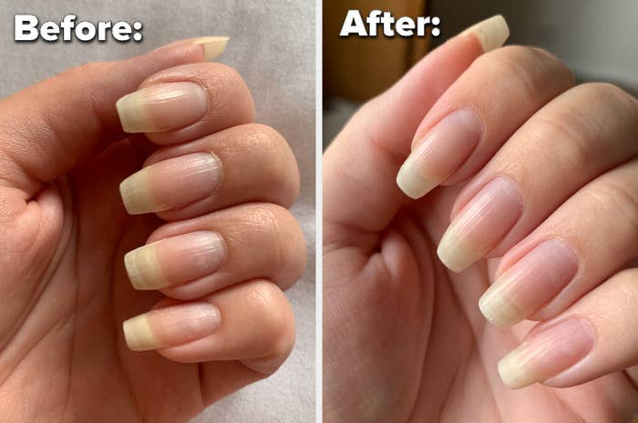 A before image of a person's nails looking dry, overgrown cuticles, and an after image of their nails looking hydrated and healthy