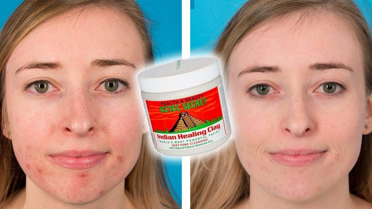Before and after image of a woman using the healing clay. Her facial skin is healthier in the after image.