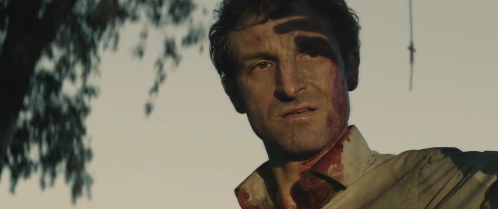Hombre con sangre en la camisa y la cara