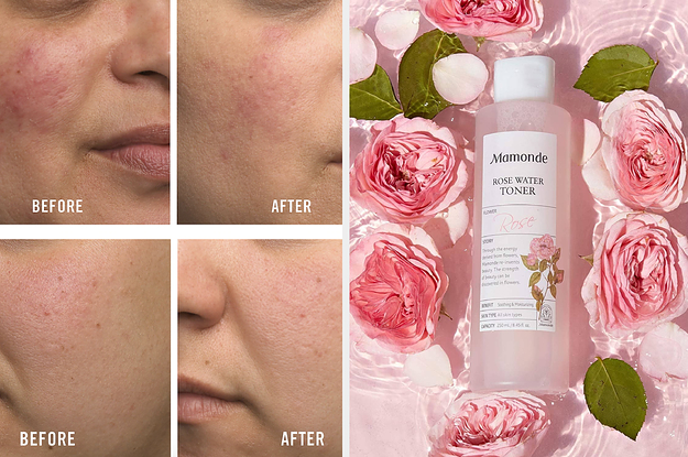 Image of article '34 Products That'll Help Soothe Irritated Skin'