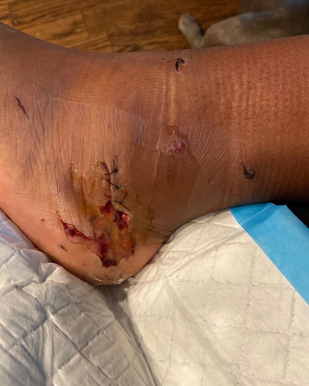Megan The Stallion's gunshot wound on her feet