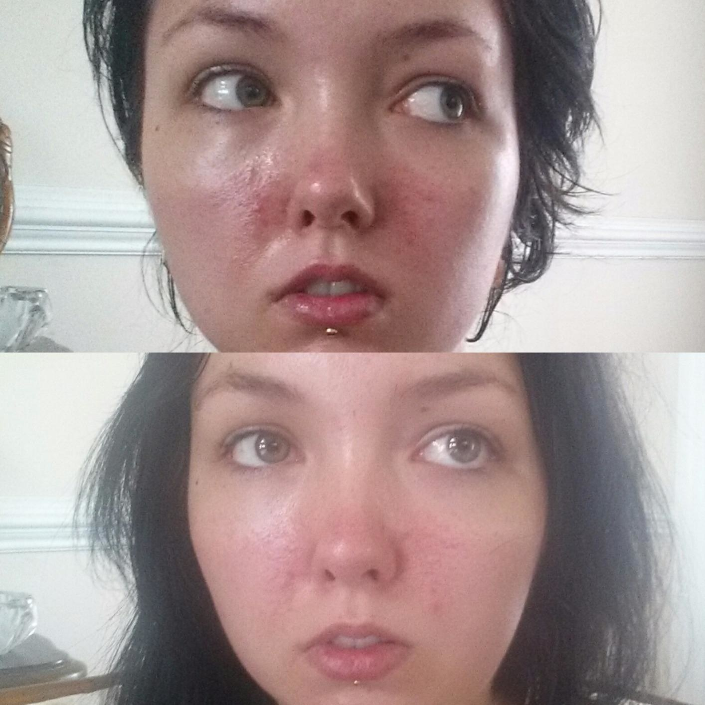 reviewer with bumpy red skin before and smoother less red skin after use of product