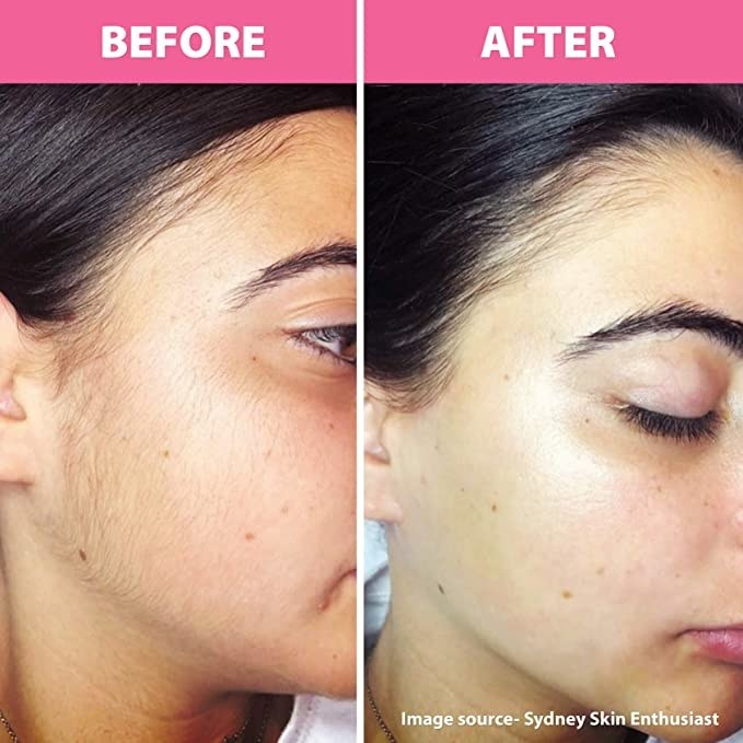 A before and after photo of a woman who has used the facial razor for facial hair removal.