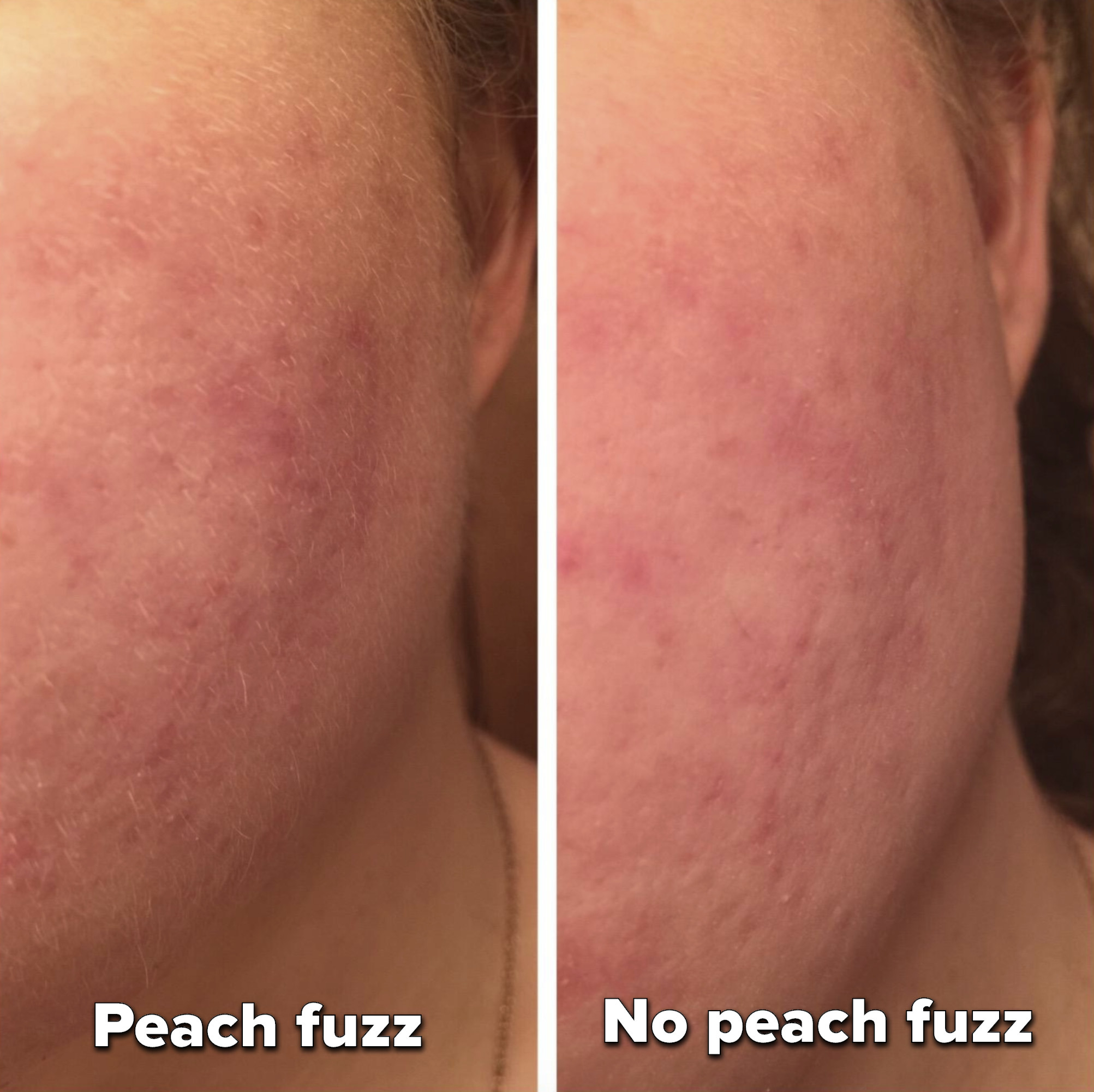 left side has a reviewer's face with peach fuzz and the right shows the same face without peach fuzz