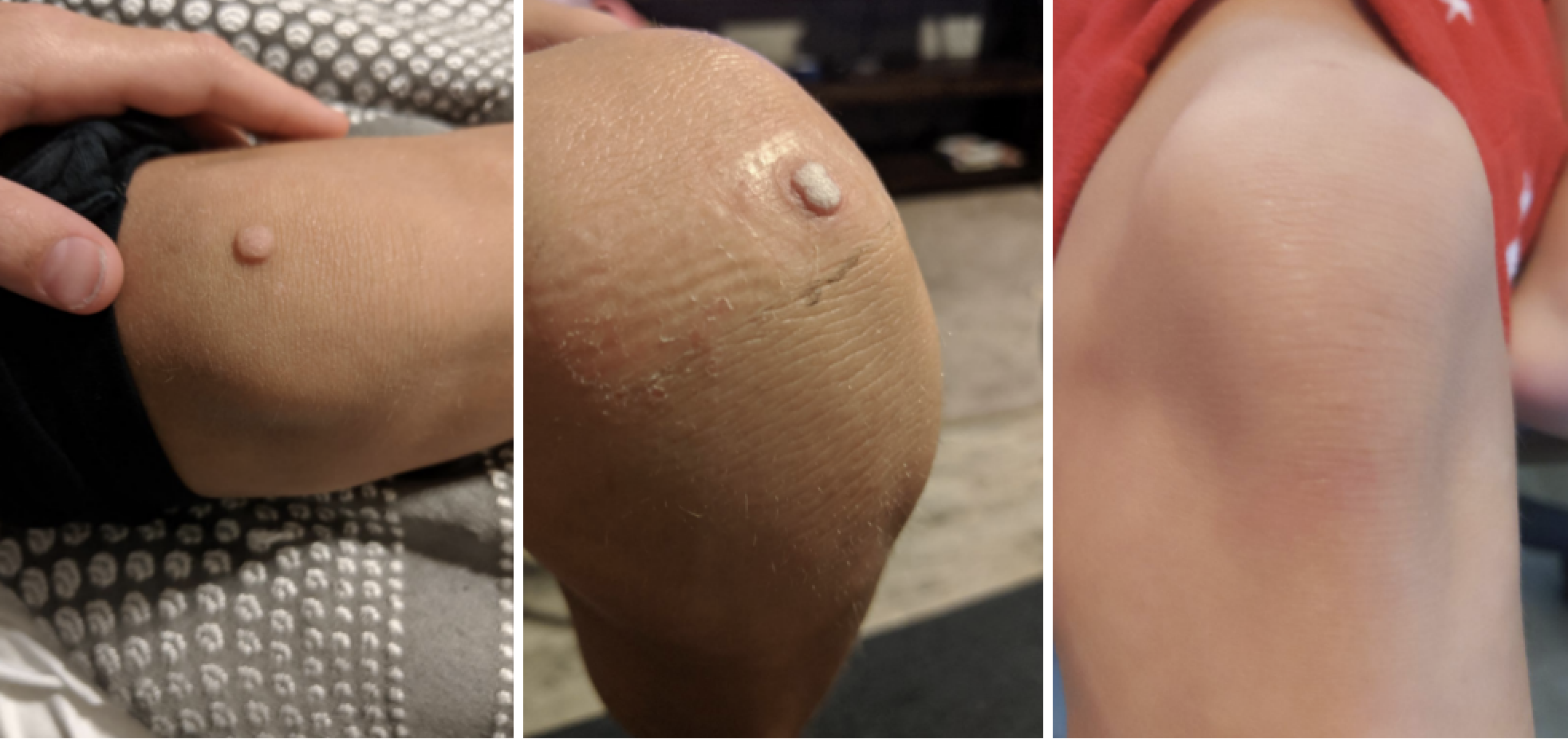 Before, during, after progression pic of reviewer's knee with a large wart. The after pic shows no wart after using the bandages.