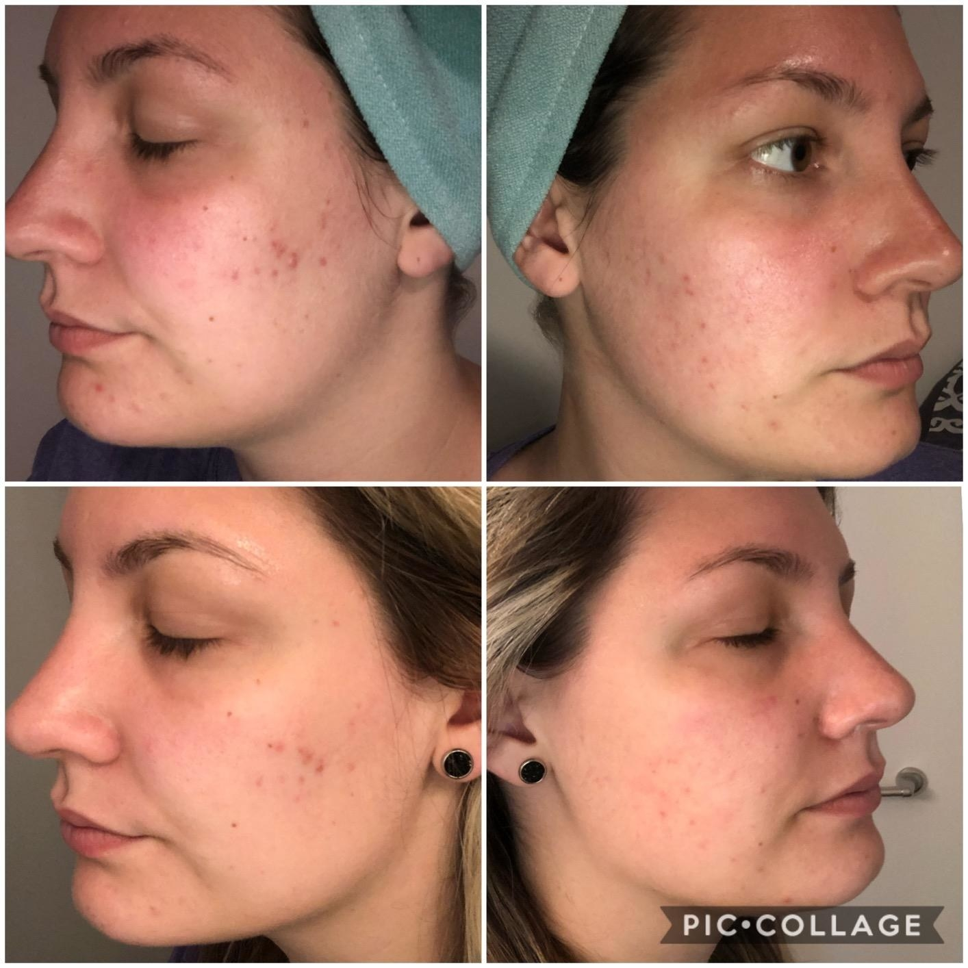 a four-photo collage of a before and after of reviewer's acne-scarred skin, showing her scars slowly fading and her skin becoming more even-toned with time