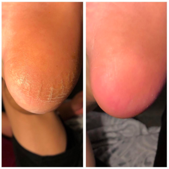 Reviewer photo showing before-and-after photos of their dry, cracked heel looking shiny and smooth after using Colossal foot rasp